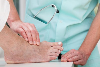 Are Seniors Able to Get Bunion Surgery?